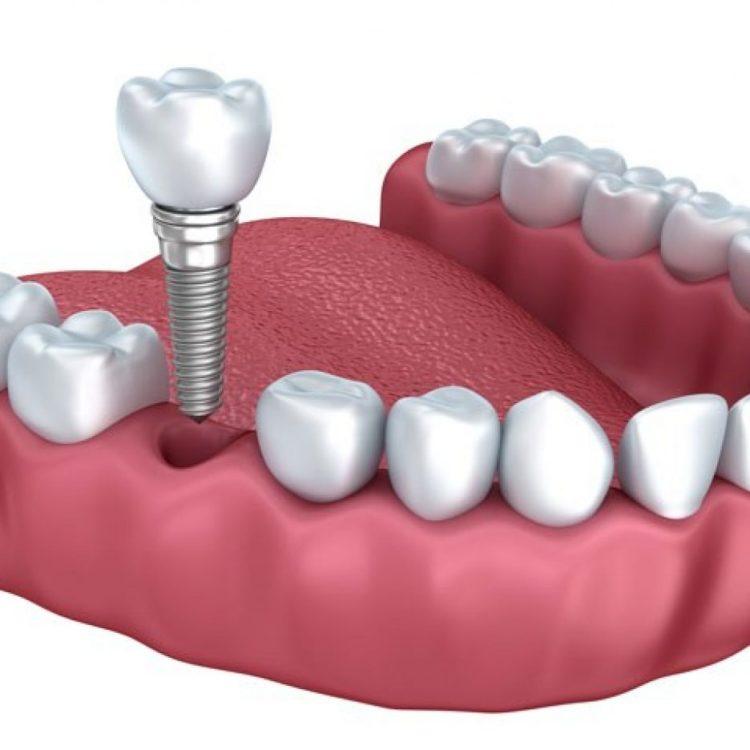 implant-tedavisi-bagcılar-kirazli-dis